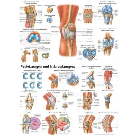 Anatomia człowieka STAW KOLANOWY CZŁOWIEKA poster 70 x 100 cm,producent: RUDIGER ANATOMIE, photo: 1