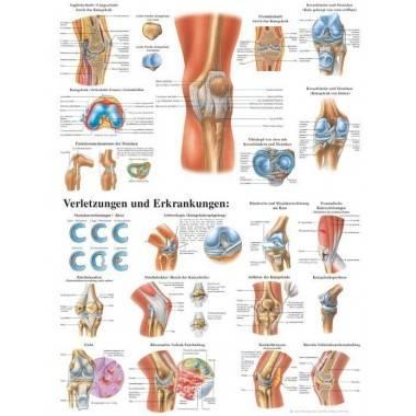Anatomia człowieka STAW KOLANOWY CZŁOWIEKA poster 70x100cm język angielski,producent: Rudiger Anatomie, zdjecie photo: 1 | onlin