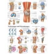 Anatomia człowieka STAW KOLANOWY CZŁOWIEKA poster 70x100cm język angielski,producent: Rudiger Anatomie, zdjecie photo: 1 | klubf