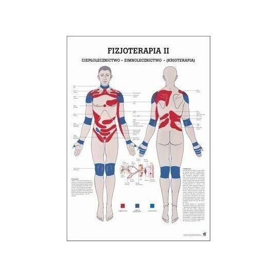 Anatomia człowieka KRIOTERAPIA poster 70x100cm język polski,producent: RUDIGER ANATOMIE, photo: 1