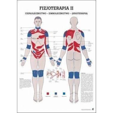 Anatomia człowieka KRIOTERAPIA plakat 70x100cm język polski,producent: Rudiger Anatomie, zdjecie photo: 1   online shop klubfitn