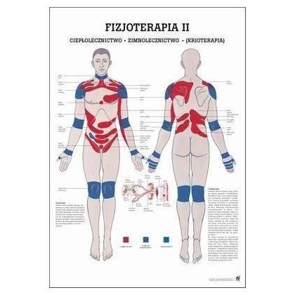 Anatomia człowieka KRIOTERAPIA plakat 70x100cm język polski,producent: Rudiger Anatomie, zdjecie photo: 1 | online shop klubfitn