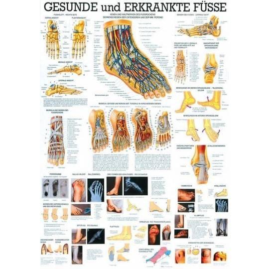 Anatomia człowieka STOPY ZDROWE I CHORE poster 70 x 100 cm,producent: RUDIGER ANATOMIE, photo: 1