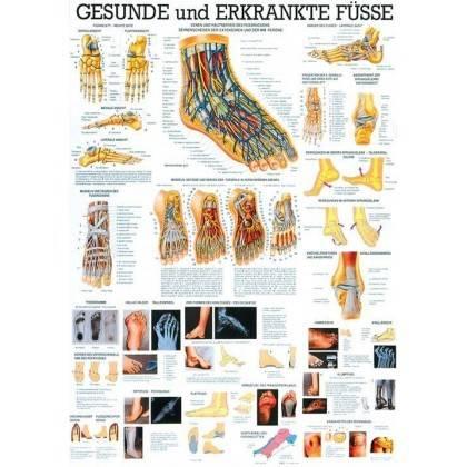 Anatomia człowieka STOPY ZDROWE I CHORE poster 70 x 100 cm Rudiger Anatomie - 1   klubfitness.pl