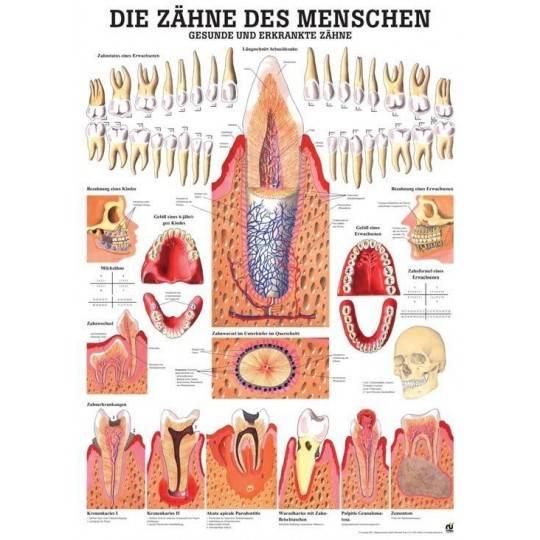 Anatomia człowieka ZĘBY ZDROWE I CHORE poster 70 x 100 cm,producent: Rudiger Anatomie, zdjecie photo: 1 | online shop klubfitnes