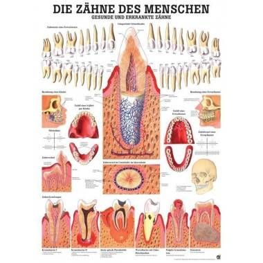 Anatomia człowieka ZĘBY ZDROWE I CHORE poster 70 x 100 cm,producent: RUDIGER ANATOMIE, photo: 1