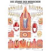 Anatomia człowieka ZĘBY ZDROWE I CHORE poster 70 x 100 cm,producent: Rudiger Anatomie, zdjecie photo: 1 | klubfitness.pl | sprzę