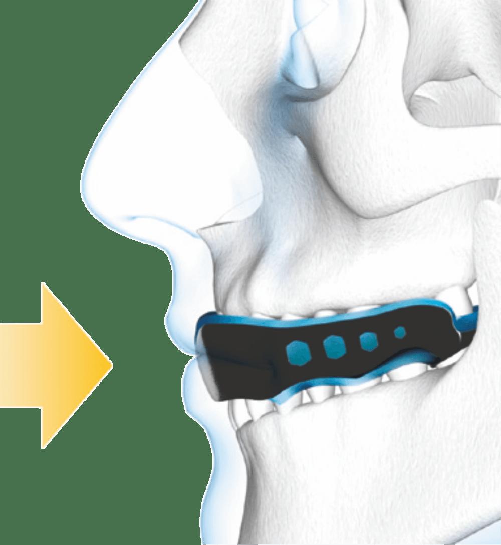 Ochraniacz szczęki Shock Doctor | Gel Max | budowa