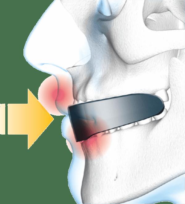 Shock Doctor Double Nano | opis i właściwości